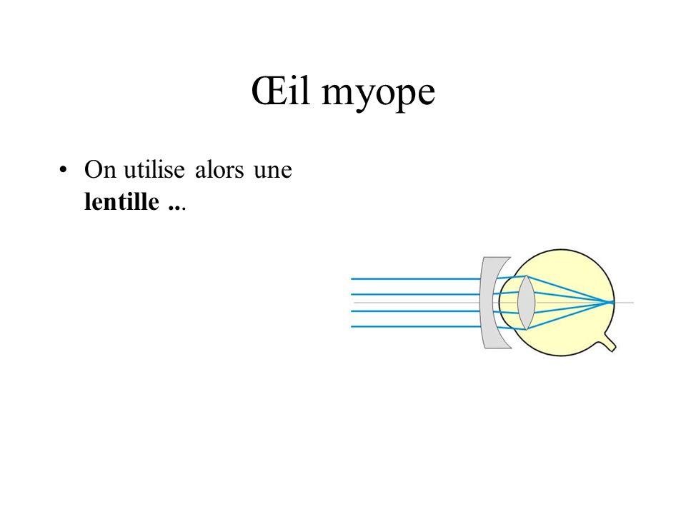 Œil myope On utilise alors une lentille ...