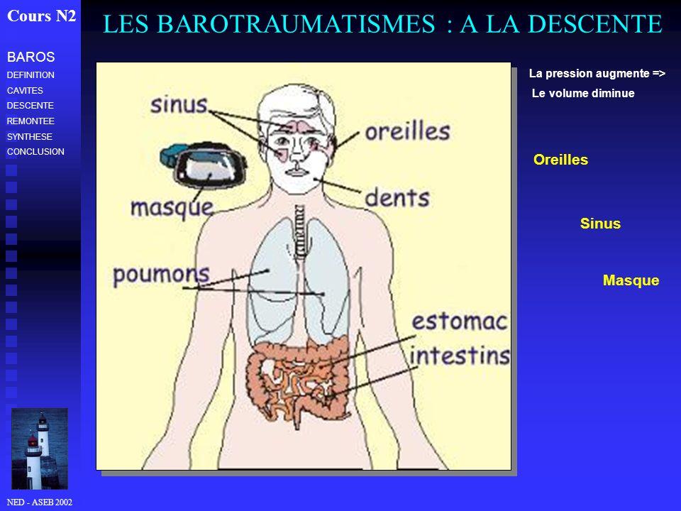 LES BAROTRAUMATISMES : A LA DESCENTE