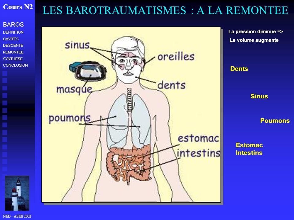 LES BAROTRAUMATISMES : A LA REMONTEE