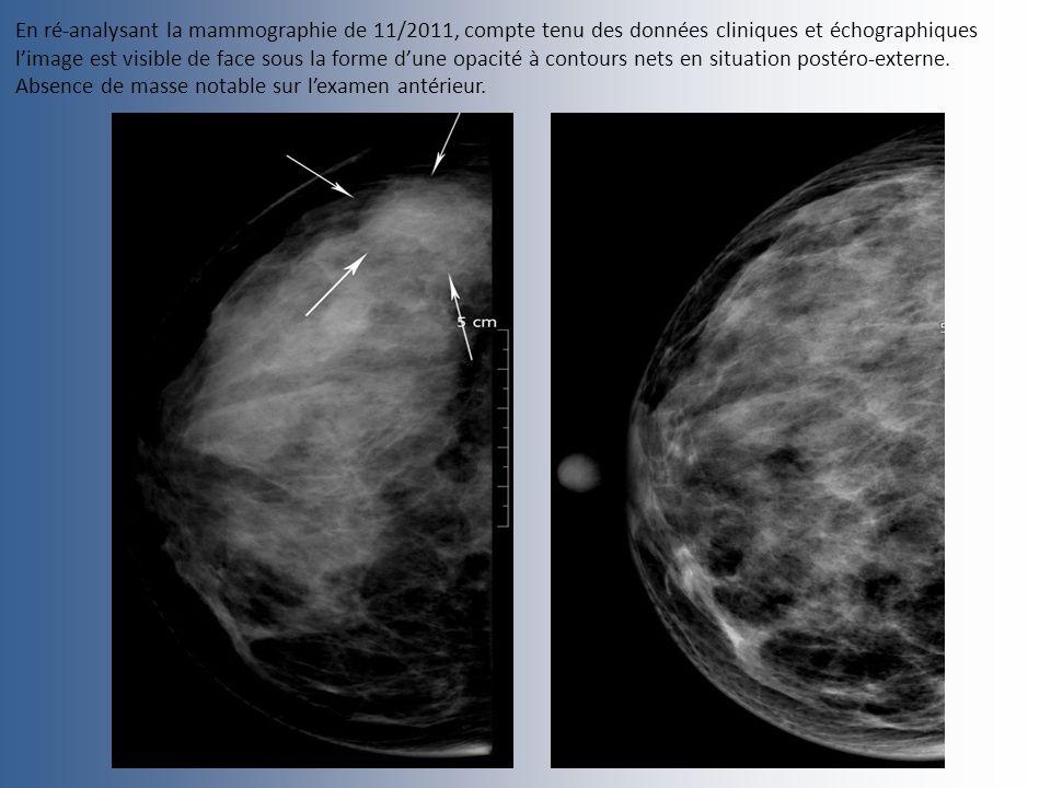 En ré-analysant la mammographie de 11/2011, compte tenu des données cliniques et échographiques l'image est visible de face sous la forme d'une opacité à contours nets en situation postéro-externe.