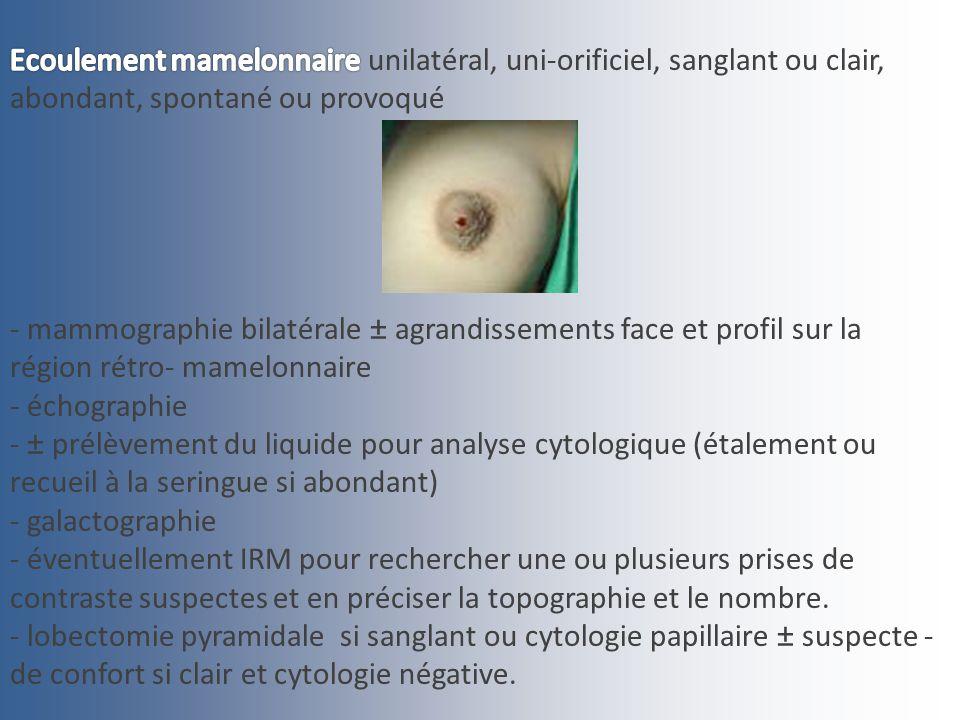 Ecoulement mamelonnaire unilatéral, uni-orificiel, sanglant ou clair, abondant, spontané ou provoqué