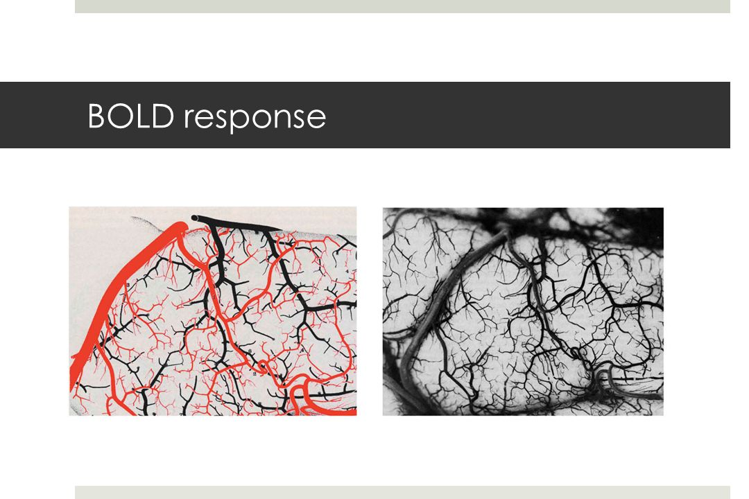 BOLD response fmri-fig-06-02-0.jpg