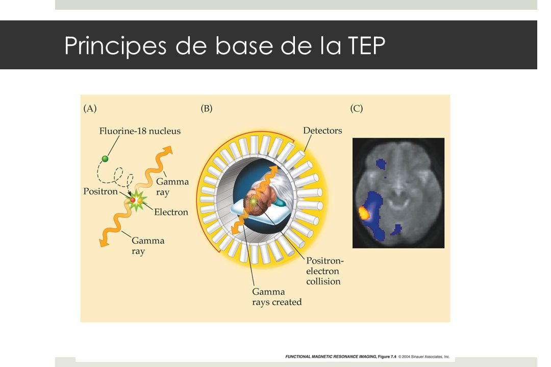 Principes de base de la TEP
