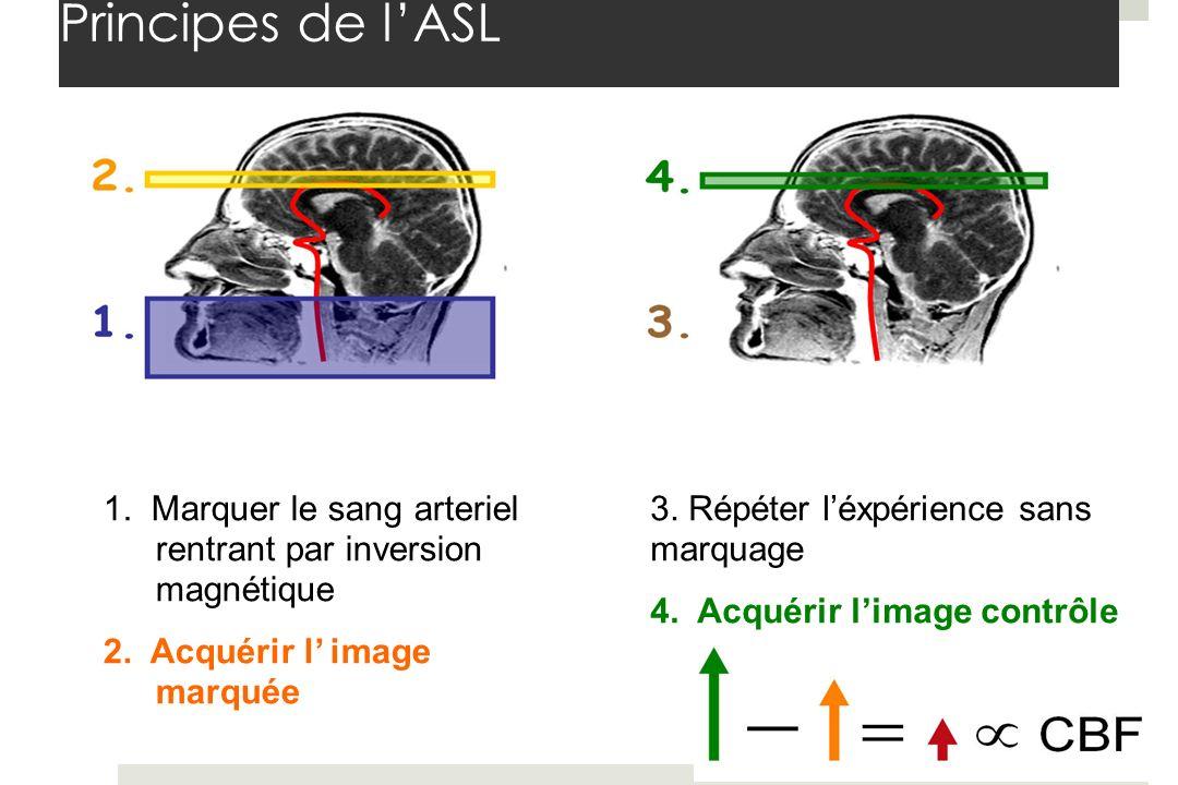 Principes de l'ASL 1. Marquer le sang arteriel rentrant par inversion magnétique. 2. Acquérir l' image marquée.