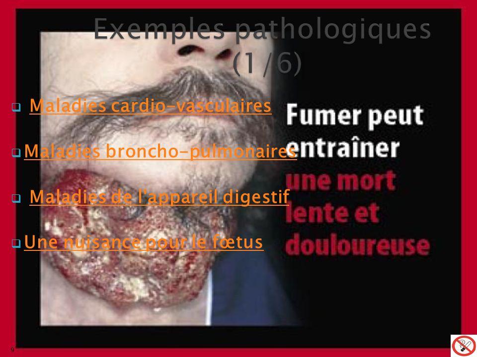 Exemples pathologiques (1/6)