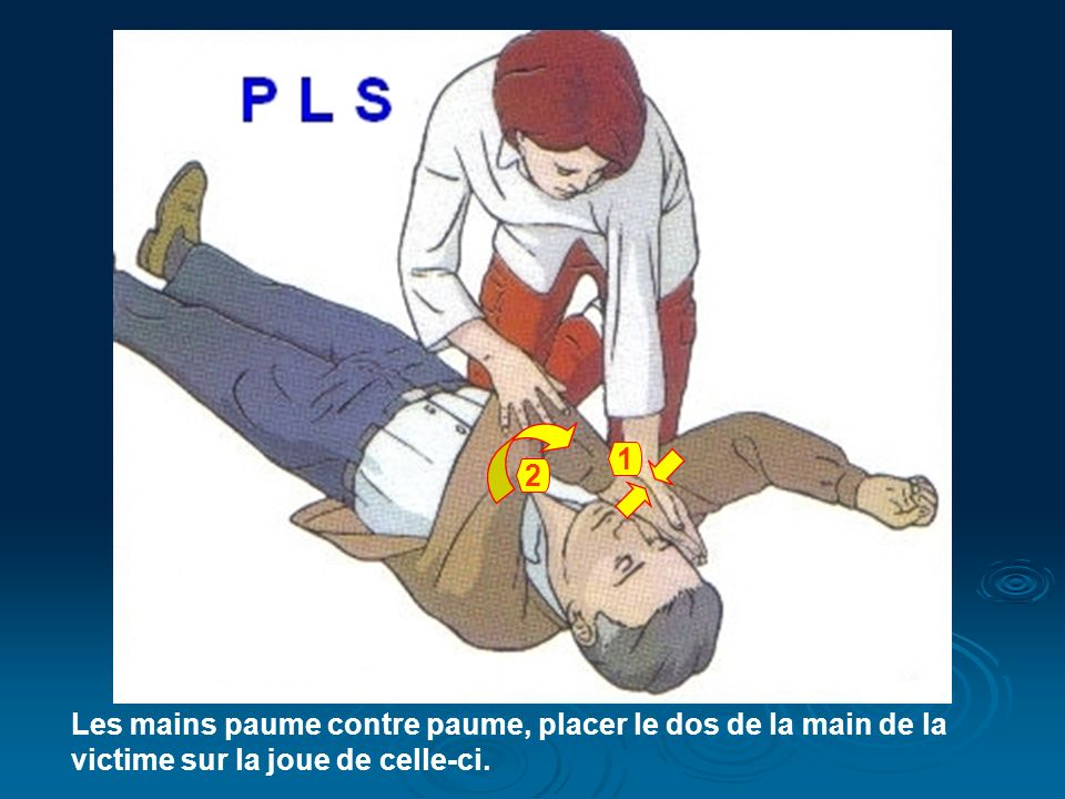 1 2 Les mains paume contre paume, placer le dos de la main de la victime sur la joue de celle-ci.
