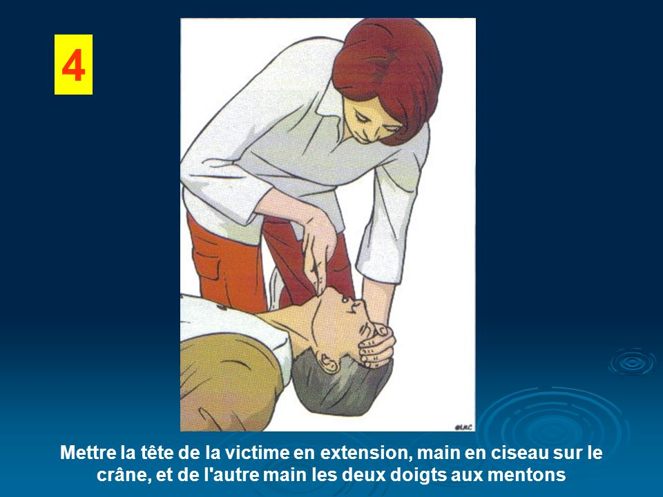 4 Mettre la tête de la victime en extension, main en ciseau sur le crâne, et de l autre main les deux doigts aux mentons.