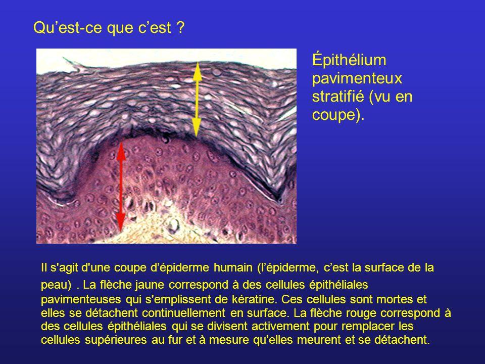 Épithélium pavimenteux stratifié (vu en coupe).