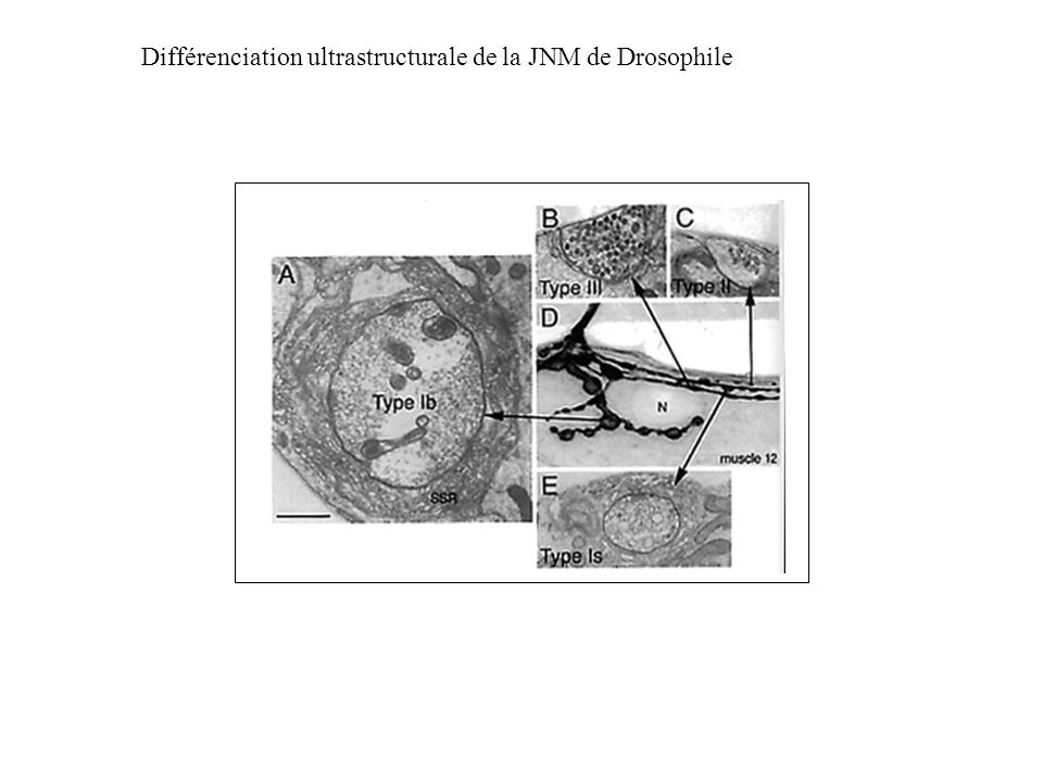 Différenciation ultrastructurale de la JNM de Drosophile