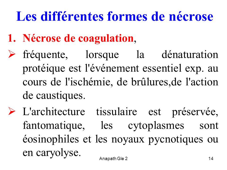 Les différentes formes de nécrose