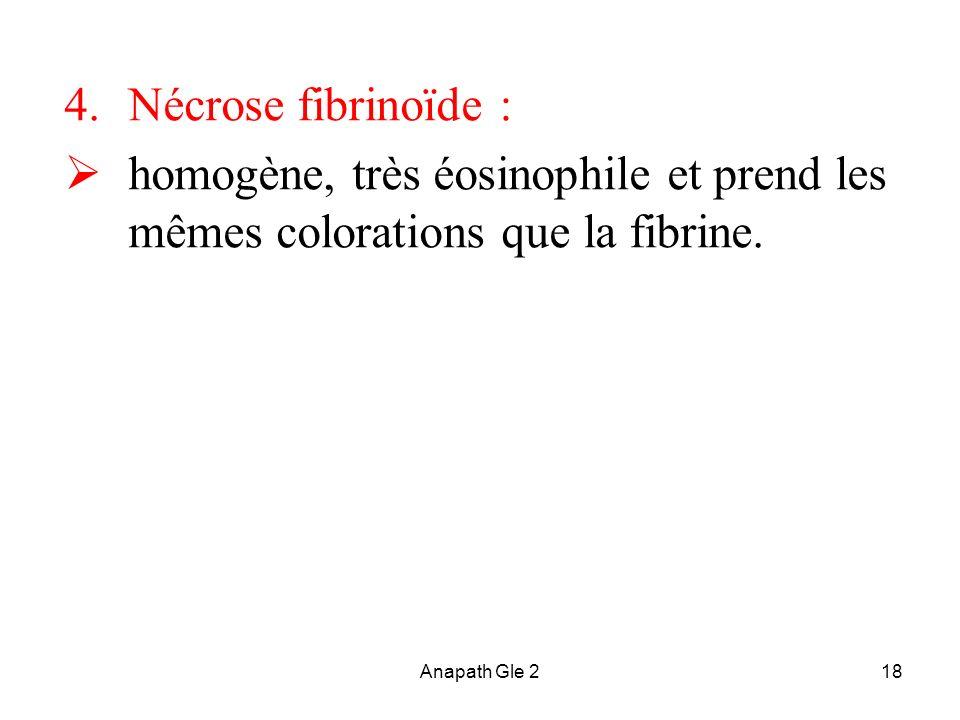 Nécrose fibrinoïde : homogène, très éosinophile et prend les mêmes colorations que la fibrine.