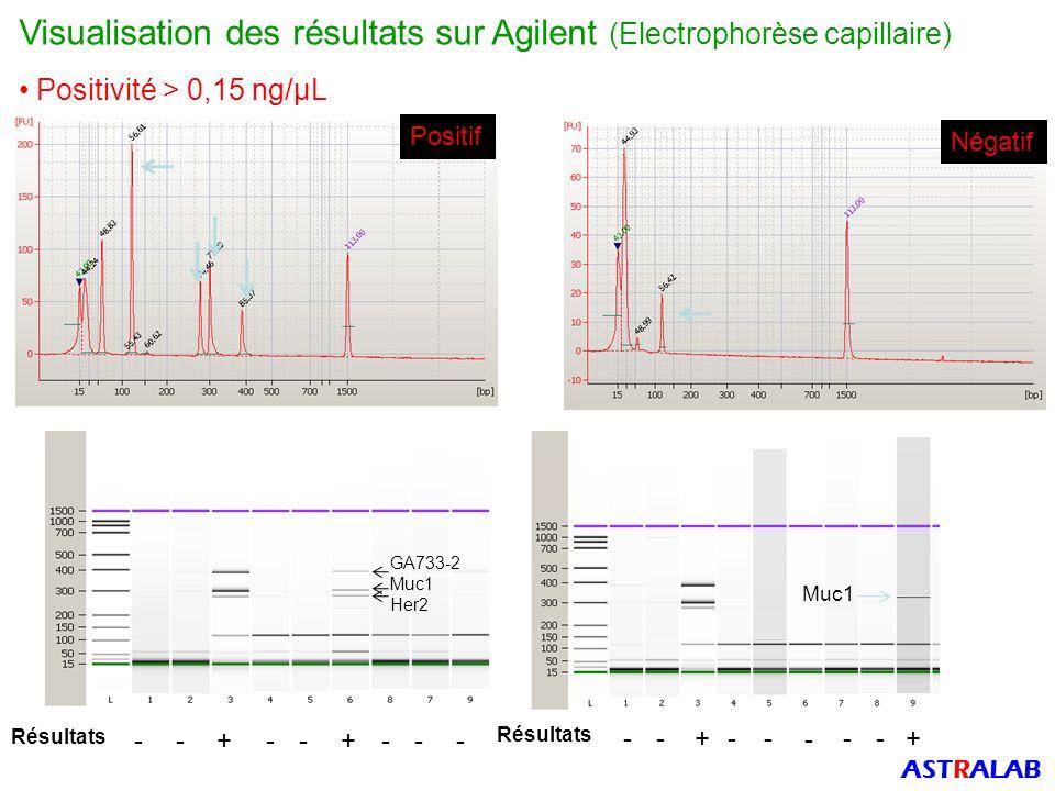 Visualisation des résultats sur Agilent (Electrophorèse capillaire)