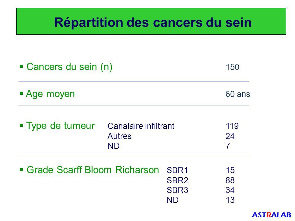 Répartition des cancers du sein