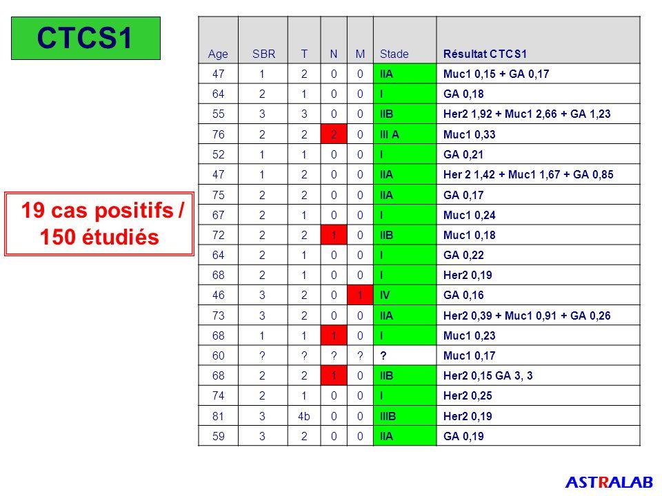 CTCS1 19 cas positifs / 150 étudiés ASTRALAB Age SBR T N M Stade