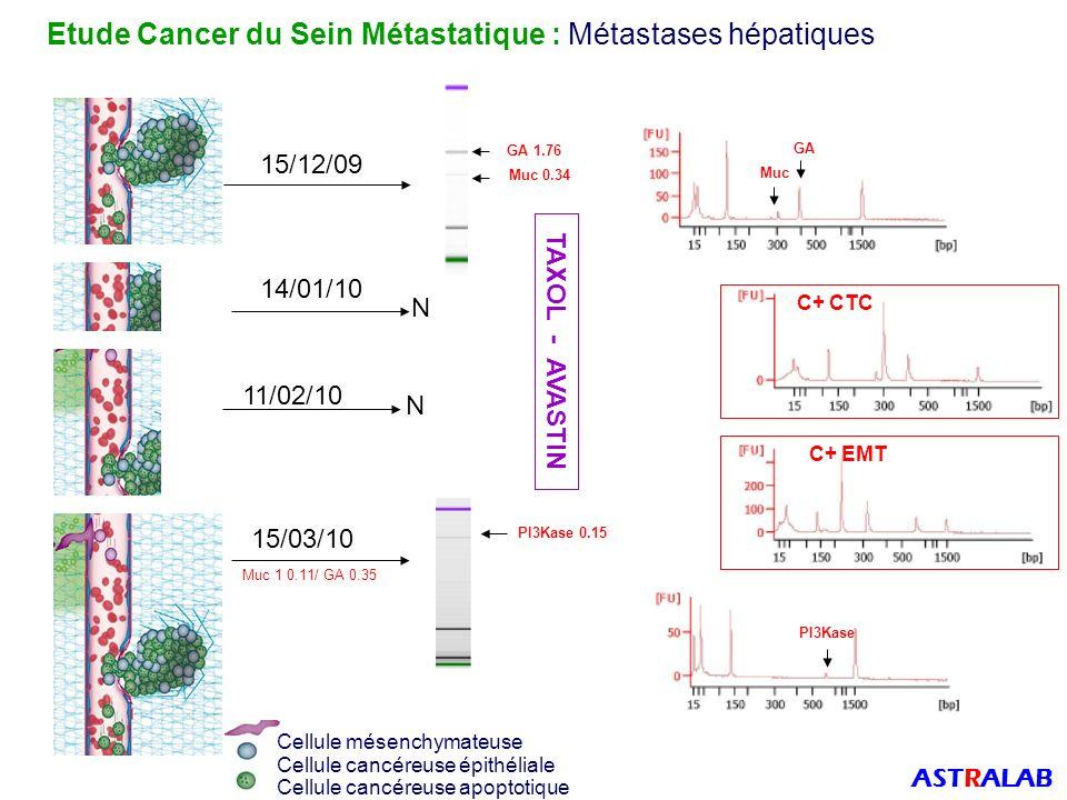 Etude Cancer du Sein Métastatique : Métastases hépatiques