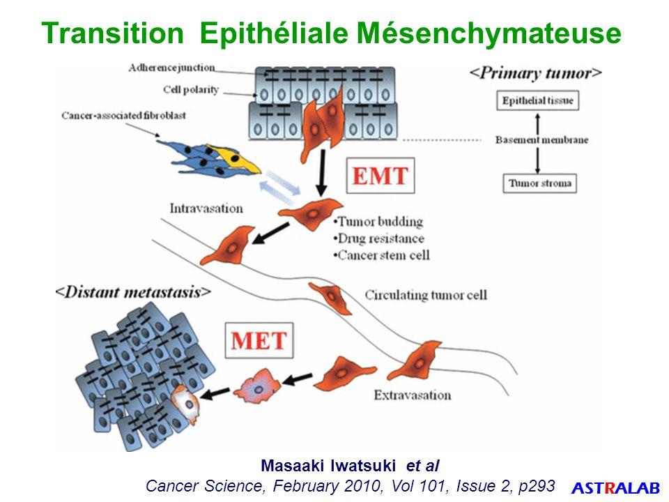Transition Epithéliale Mésenchymateuse
