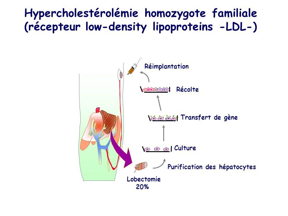 Hypercholestérolémie homozygote familiale