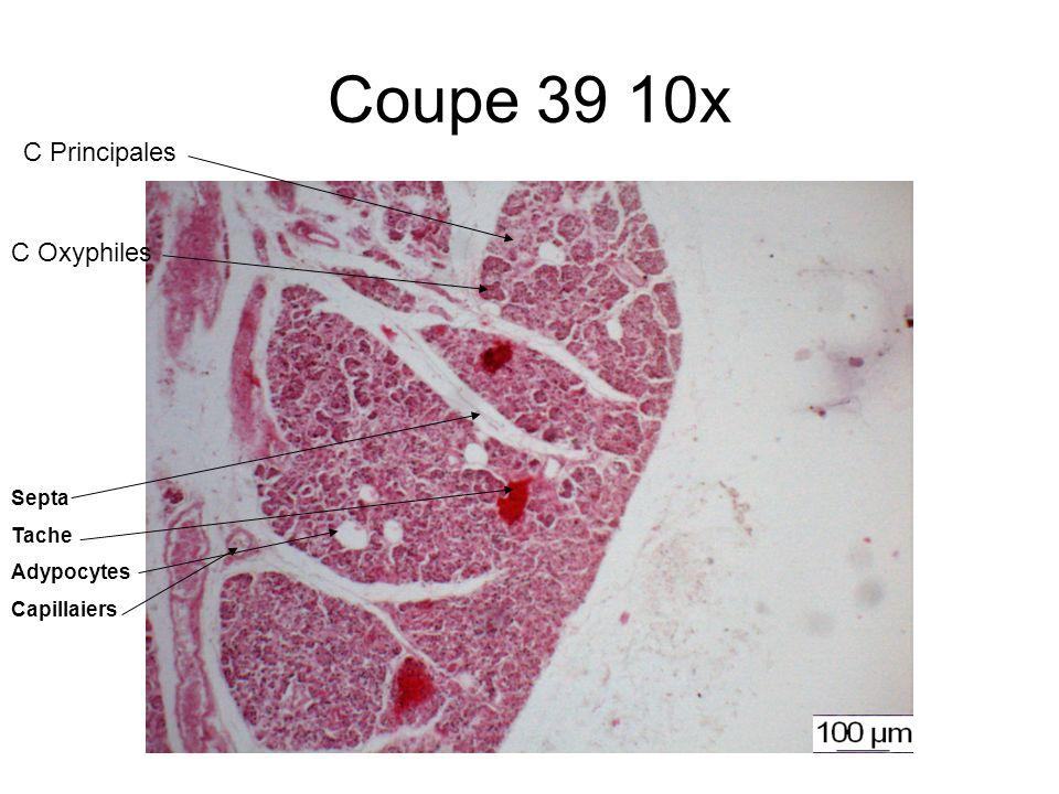 Coupe 39 10x C Principales C Oxyphiles Septa Tache Adypocytes