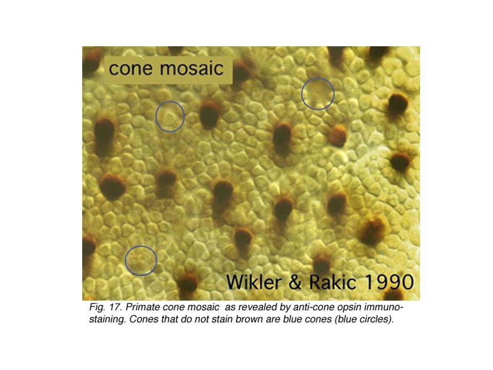 Microscopie optique du dessus de la couche de cellules pigmentaires