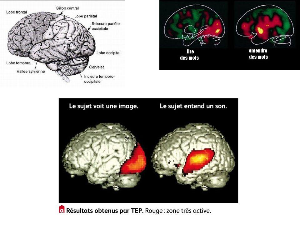 Anatomie, rappel des zones du cerveau connues par les noms des os du crane!