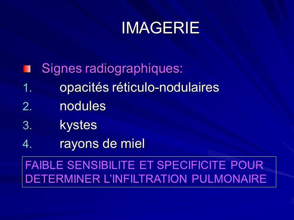 IMAGERIE Signes radiographiques: opacités réticulo-nodulaires nodules