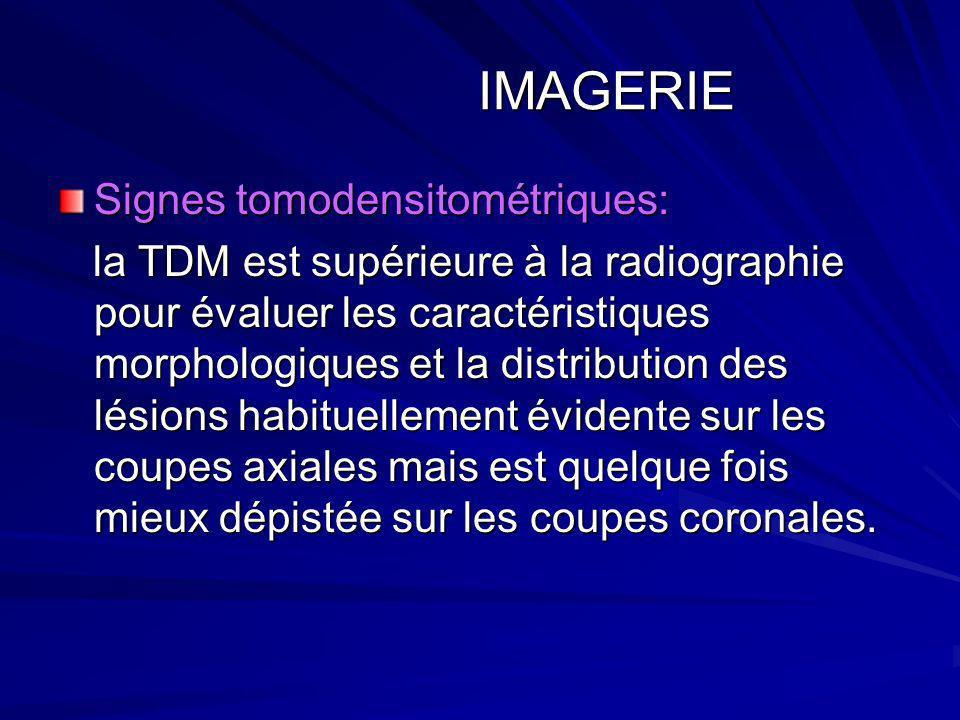 IMAGERIE Signes tomodensitométriques: