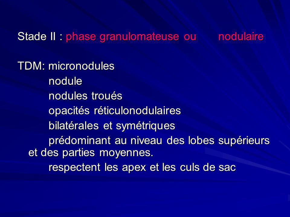 Stade II : phase granulomateuse ou nodulaire