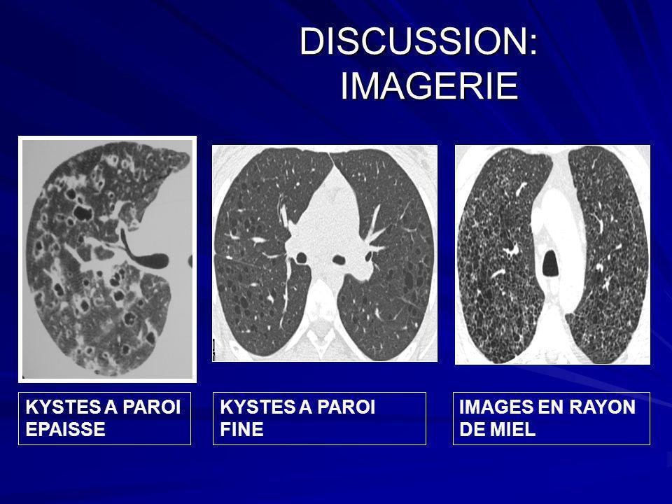 DISCUSSION: IMAGERIE KYSTES A PAROI EPAISSE KYSTES A PAROI FINE