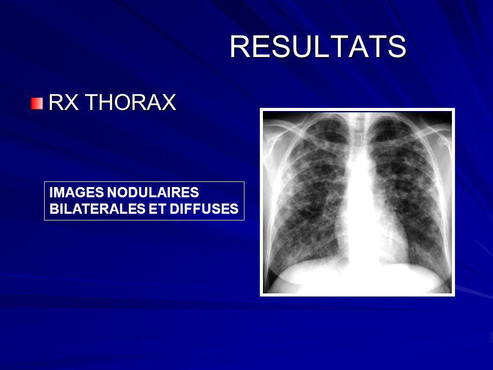 RESULTATS RX THORAX IMAGES NODULAIRES BILATERALES ET DIFFUSES