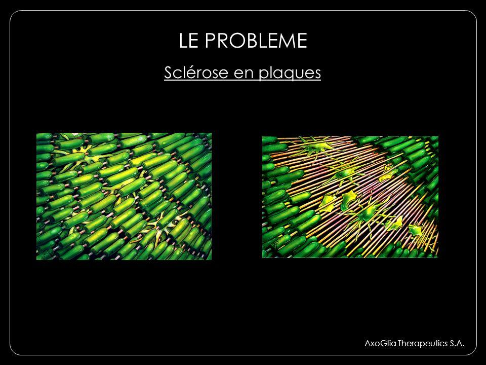 LE PROBLEME Sclérose en plaques AxoGlia Therapeutics S.A.