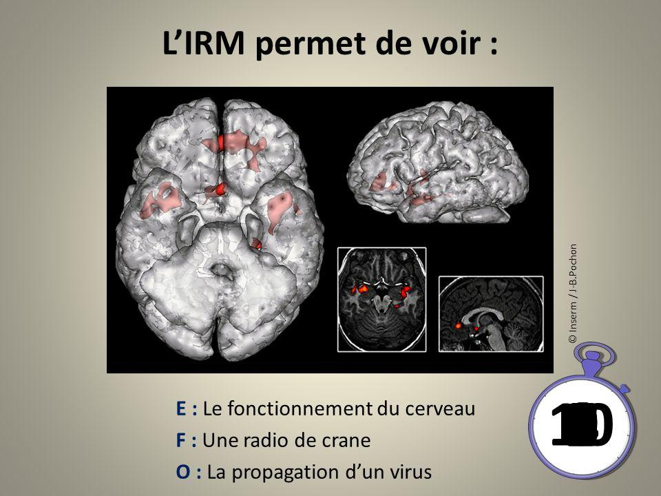 L'IRM permet de voir : © Inserm / J-B.Pochon. 10. 1. 2. 6. 3. 4. 8. 5. 9. 7. E : Le fonctionnement du cerveau.
