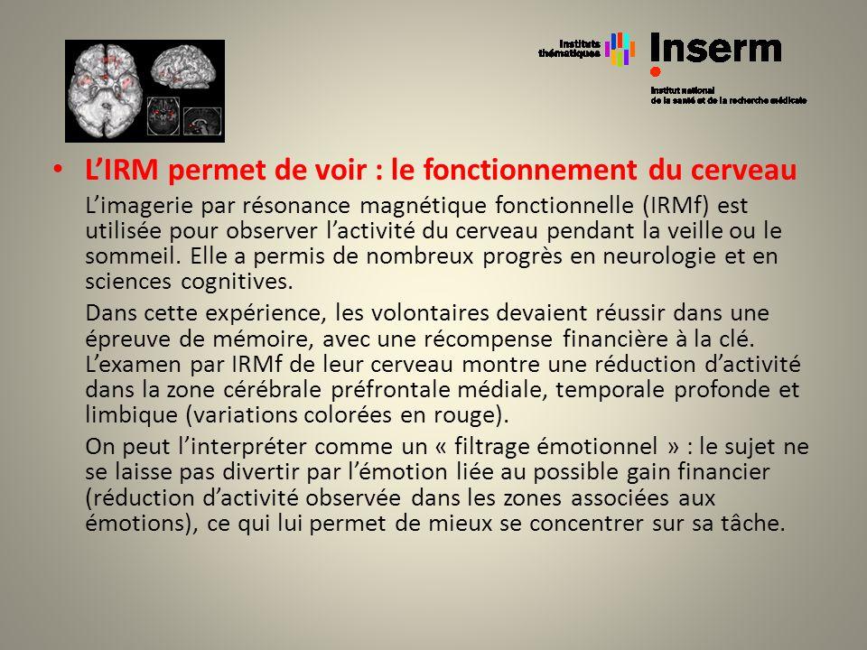 L'IRM permet de voir : le fonctionnement du cerveau