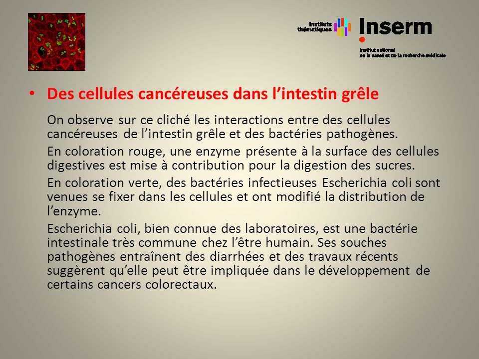 Des cellules cancéreuses dans l'intestin grêle