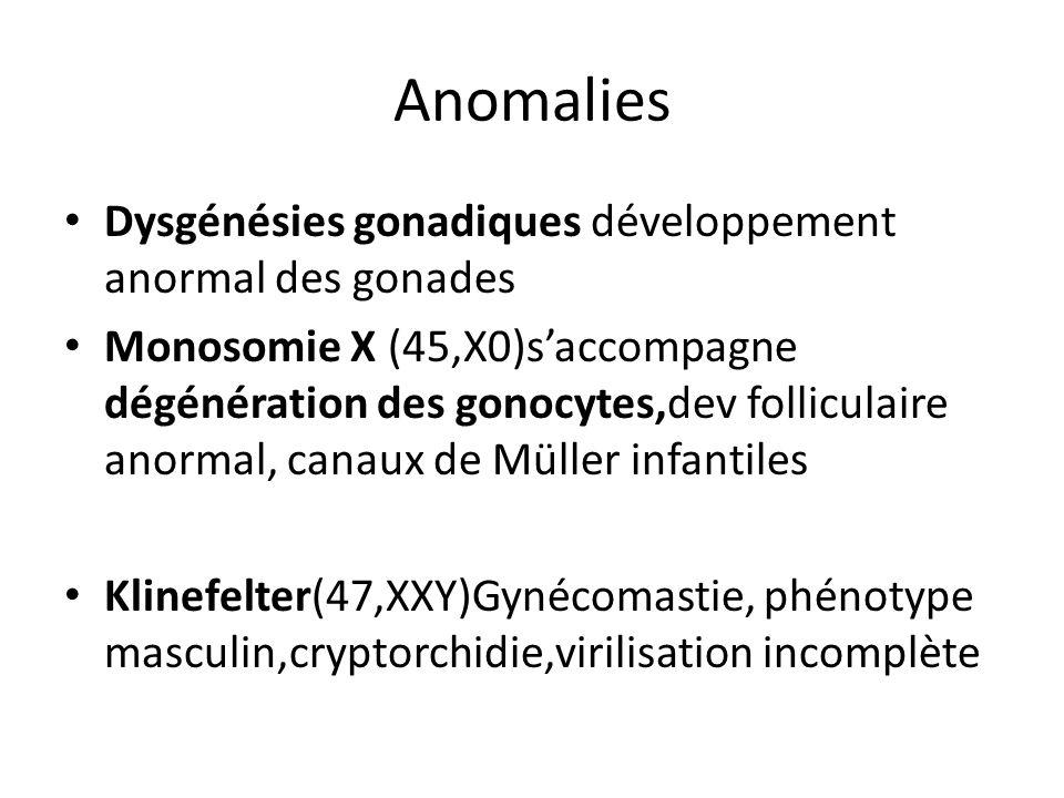 Anomalies Dysgénésies gonadiques développement anormal des gonades