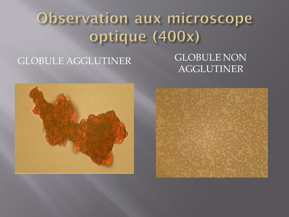 Observation aux microscope optique (400x)