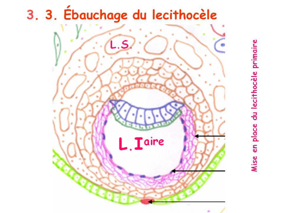 Mise en place du lecithocèle primaire