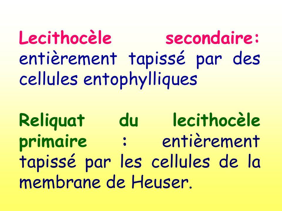 Lecithocèle secondaire: entièrement tapissé par des cellules entophylliques