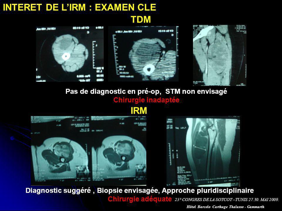 INTERET DE L'IRM : EXAMEN CLE TDM
