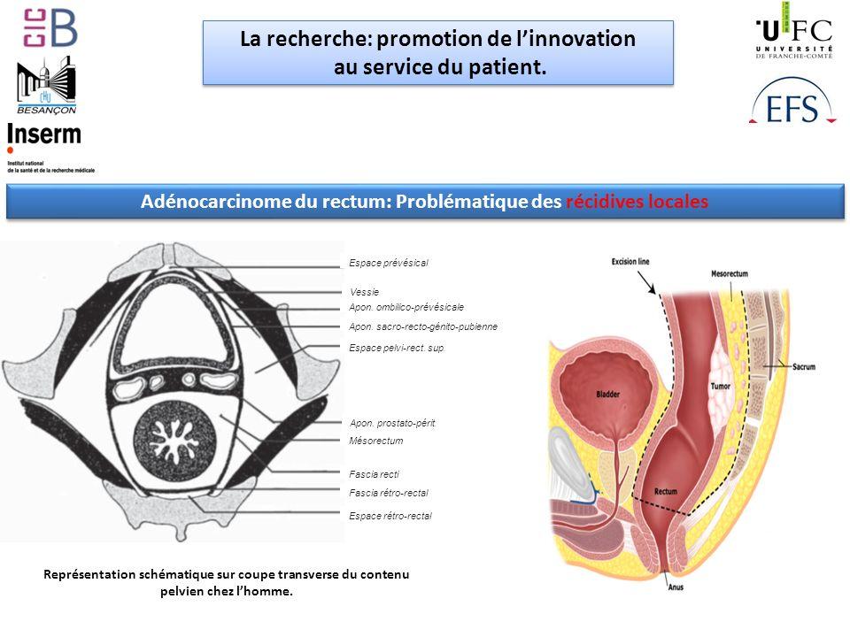 La recherche: promotion de l'innovation au service du patient.
