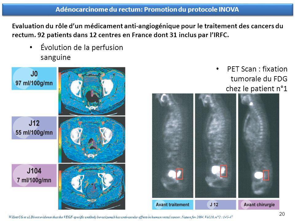 Adénocarcinome du rectum: Promotion du protocole INOVA