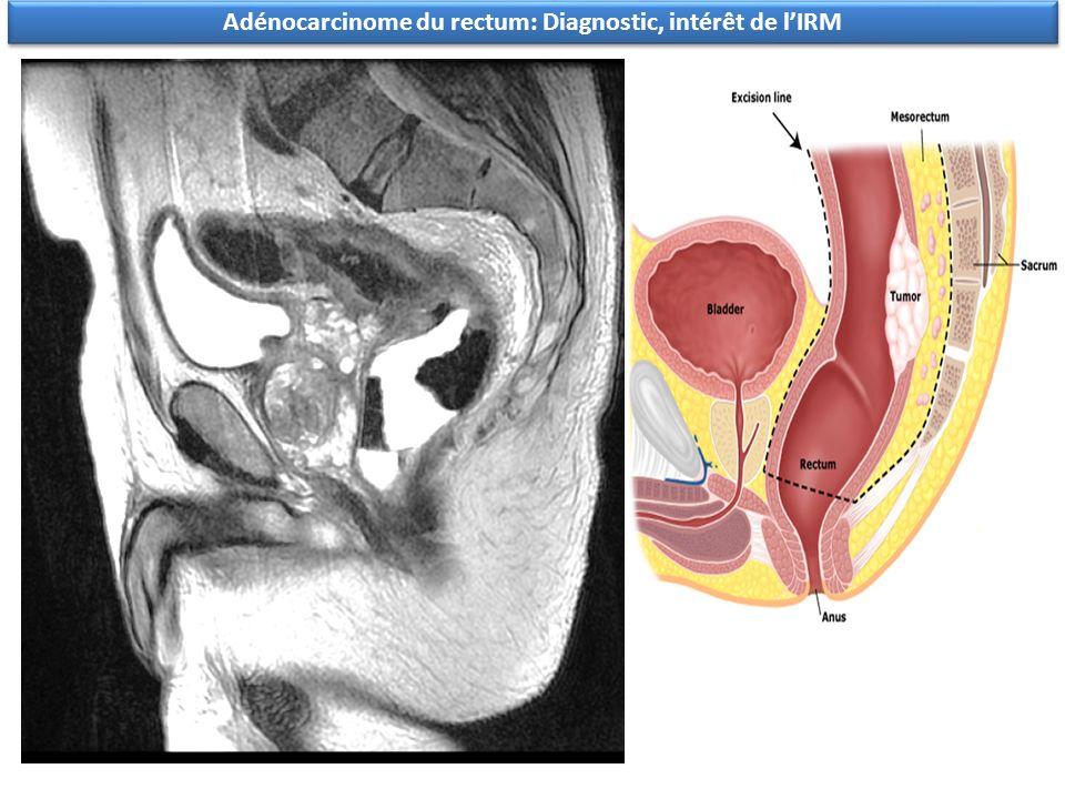 Adénocarcinome du rectum: Diagnostic, intérêt de l'IRM