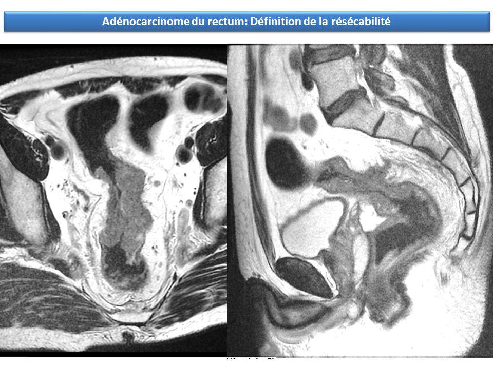 Adénocarcinome du rectum: Définition de la résécabilité