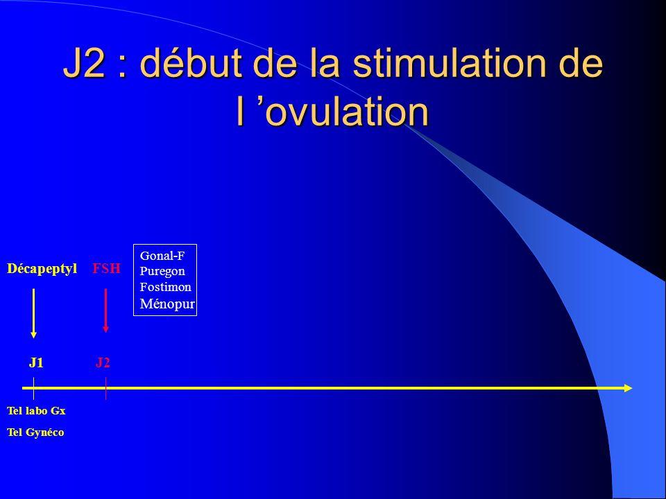 J2 : début de la stimulation de l 'ovulation