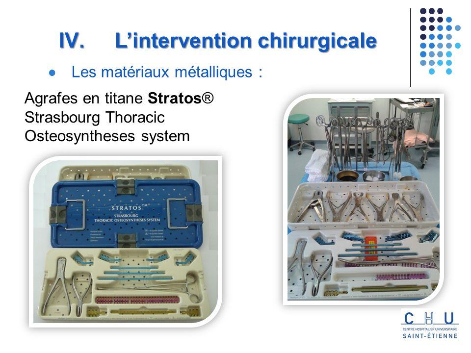 Agrafes en titane Stratos® Strasbourg Thoracic Osteosyntheses system
