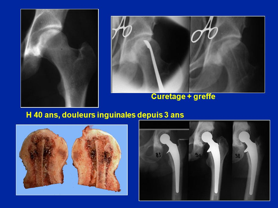 Curetage + greffe H 40 ans, douleurs inguinales depuis 3 ans
