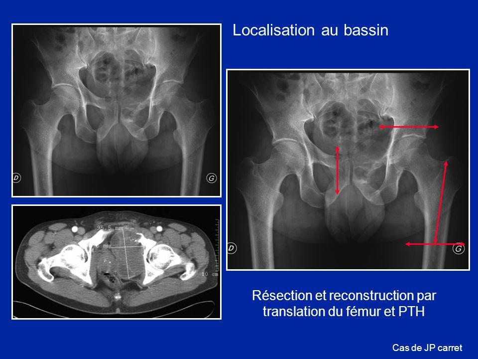 Résection et reconstruction par translation du fémur et PTH