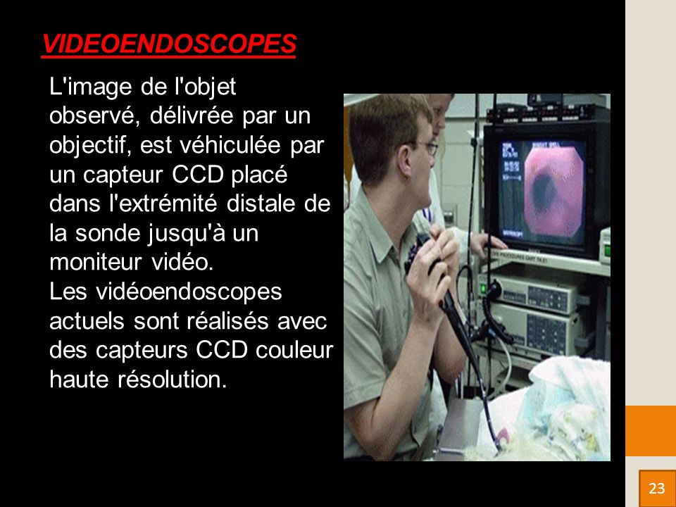 VIDEOENDOSCOPES