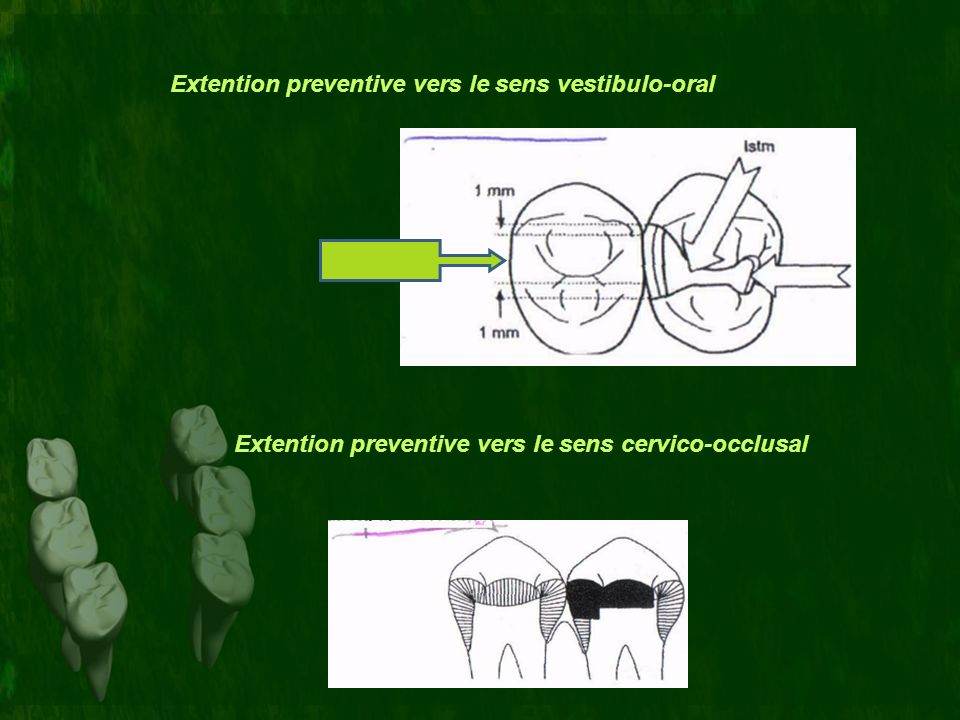 Extention preventive vers le sens vestibulo-oral