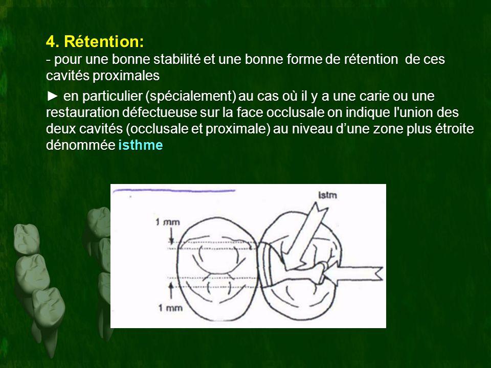 4. Rétention: - pour une bonne stabilité et une bonne forme de rétention de ces cavités proximales.