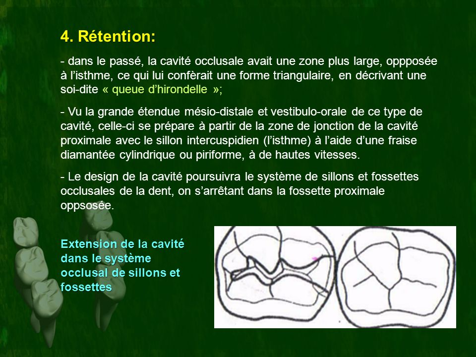 4. Rétention: